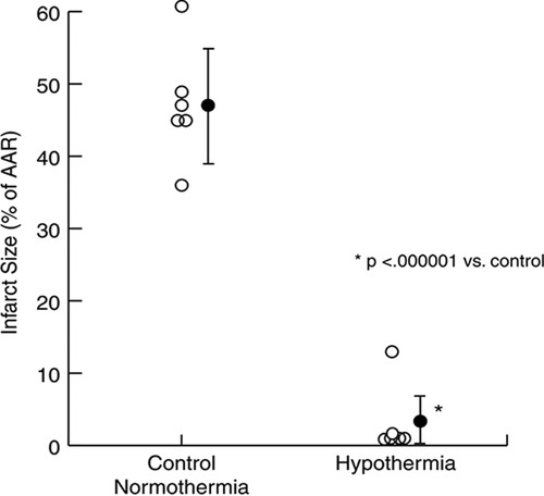 Defeating Normal Thermoregulatory Defenses | Stroke