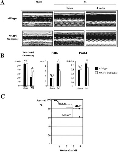 MCIP1 Overexpression Suppresses Left Ventricular Remodeling and