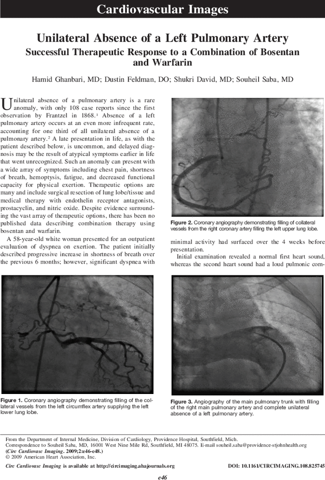 Unilateral Absence Of A Left Pulmonary Artery Circulation