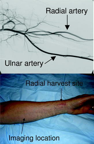 Flow-Induced Arterial Remodeling Relates to Endothelial