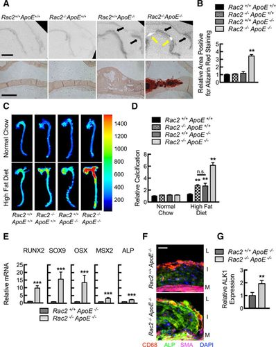 Rac2 Modulates Atherosclerotic Calcification by Regulating