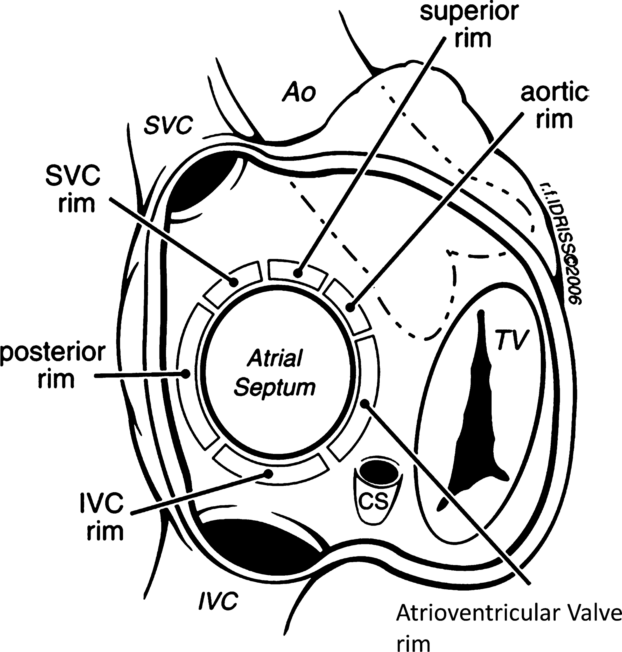 Patent Foramen Ovale Closure for Stroke Prevention and Other