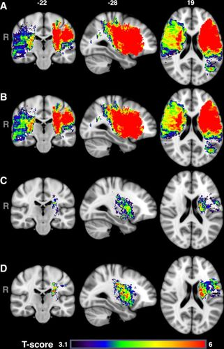 Role of Acute Lesion Topography in Initial Ischemic Stroke