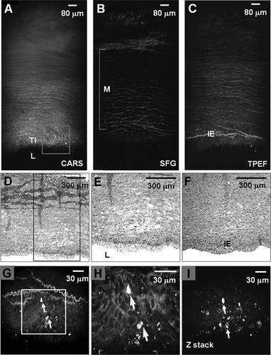 Imaging and Quantitative Analysis of Atherosclerotic Lesions