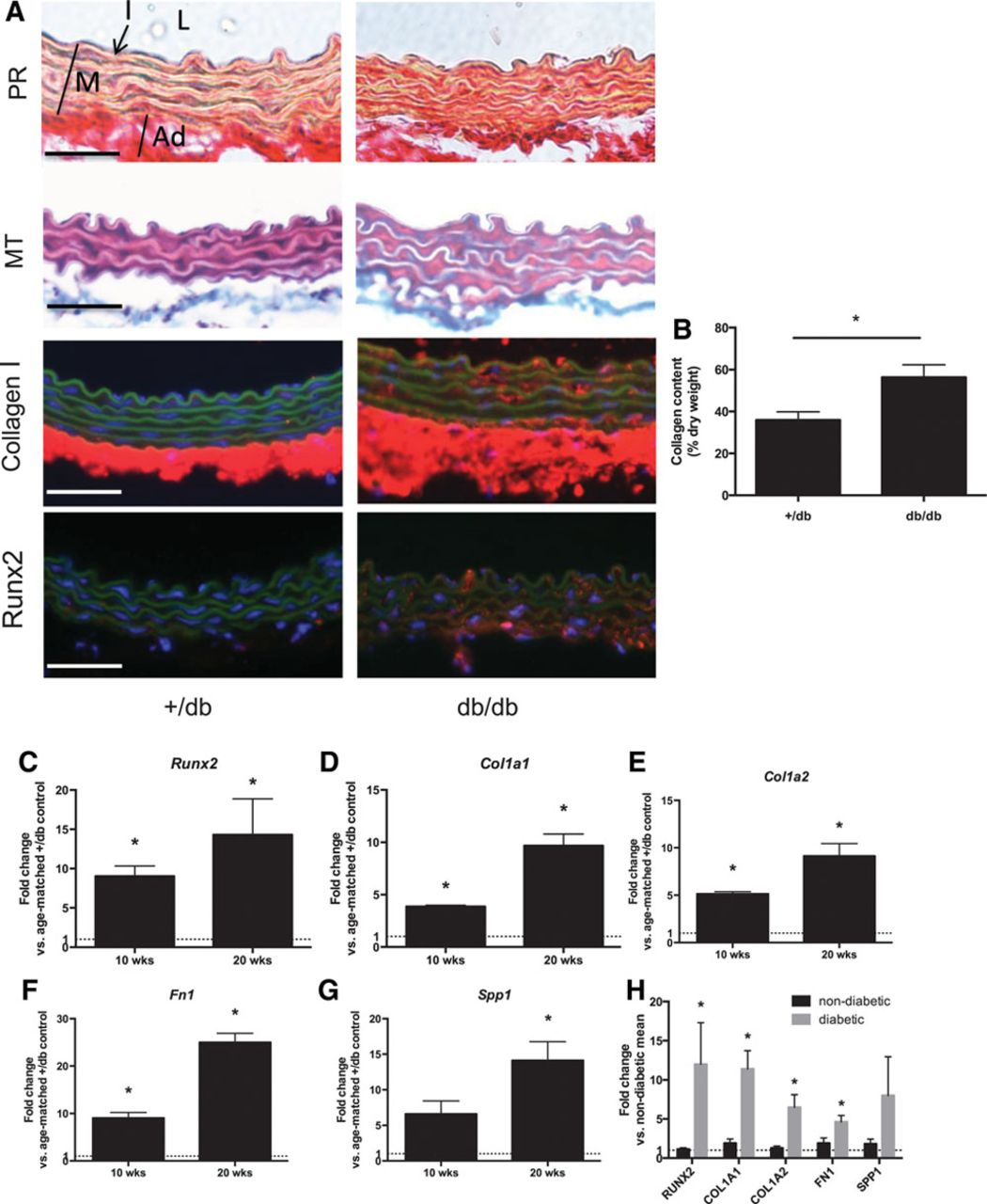 Transcription Factor Runx2 Promotes Aortic Fibrosis and Stiffness in