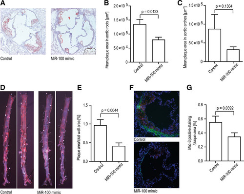MicroRNA-100 Suppresses Chronic Vascular Inflammation by