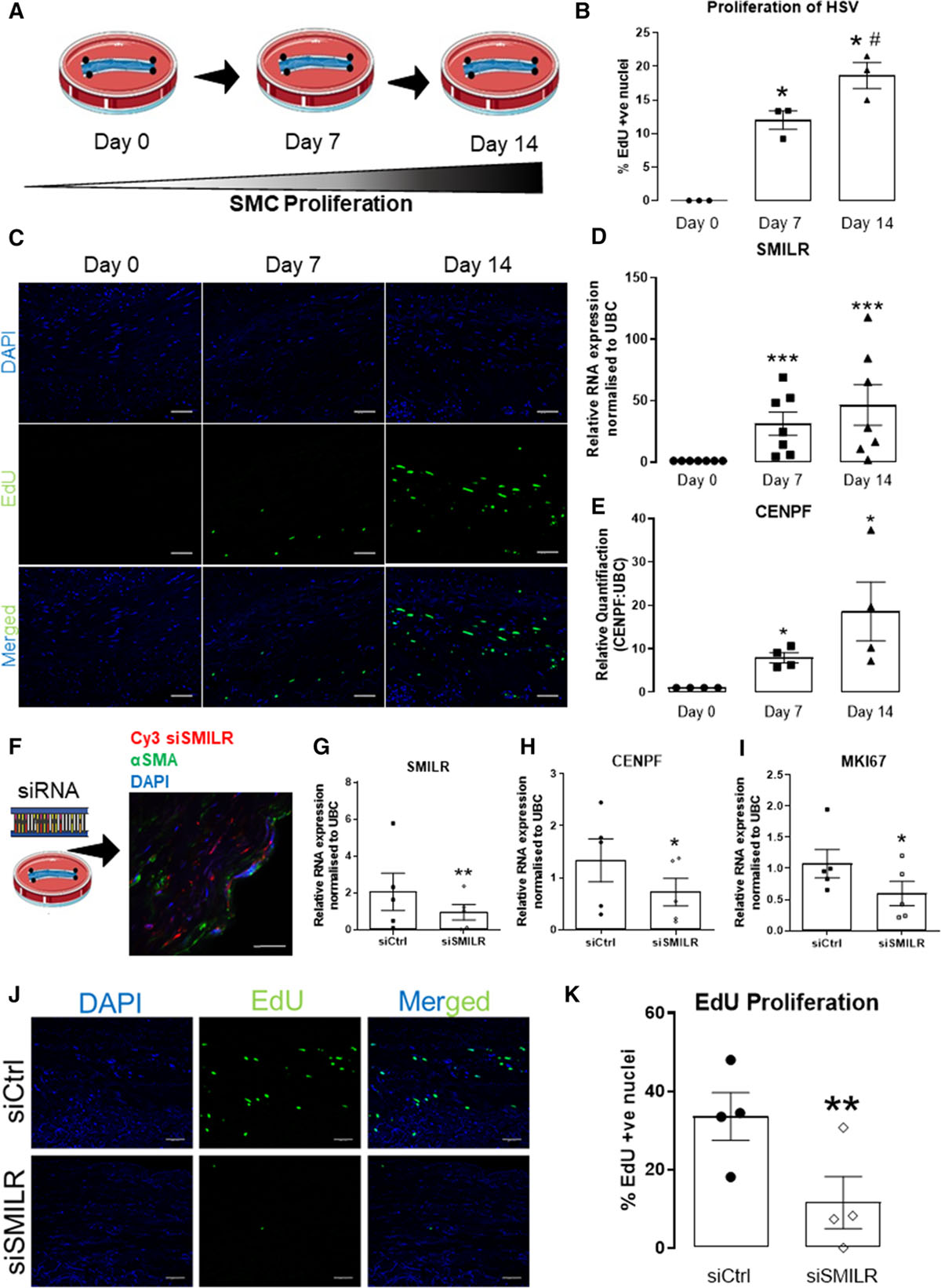 The Human-Specific and Smooth Muscle Cell-Enriched LncRNA
