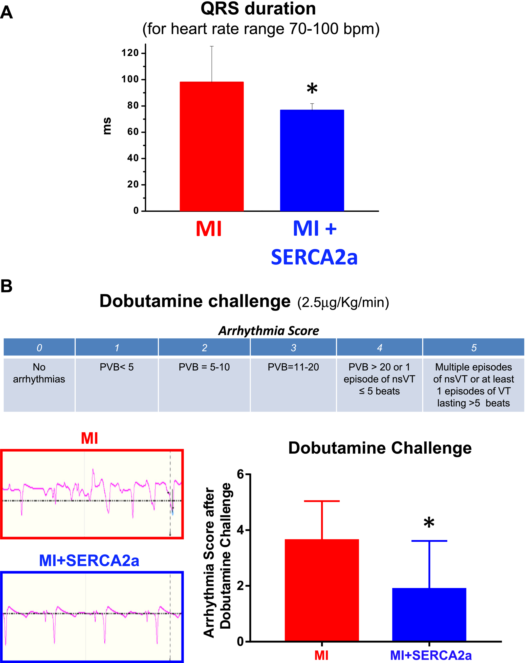 Primary Effect of SERCA2a Gene Transfer on Conduction Reserve in