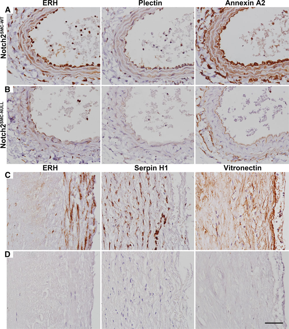 Notch2 and Proteomic Signatures in Mouse Neointimal Lesion
