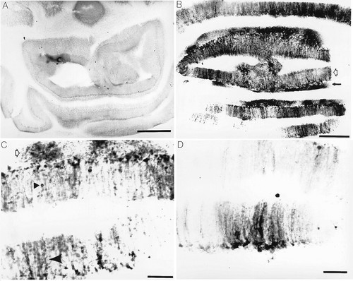 Subarachnoid Injections of Lysed Blood Induce the hsp70