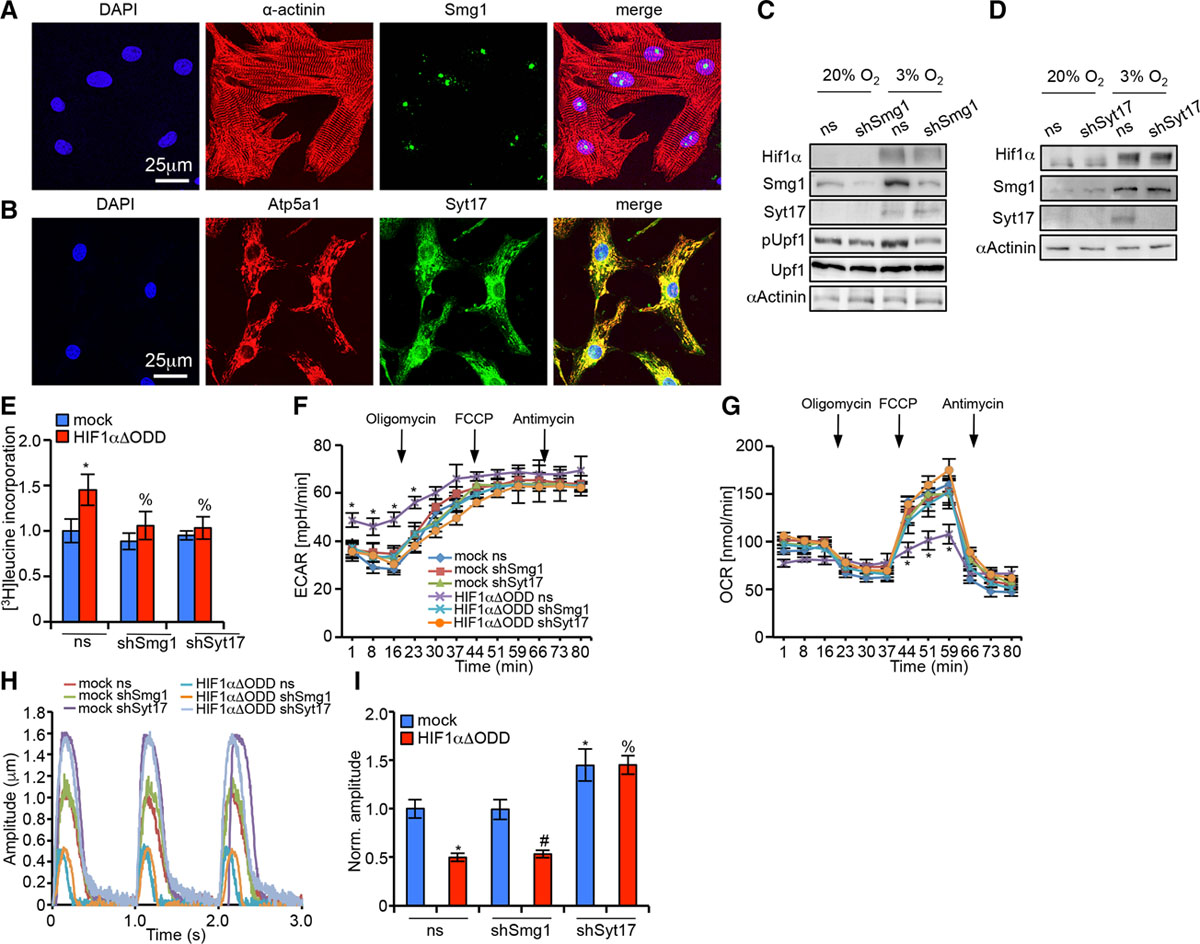 Inhibition of the Hypoxia-Inducible Factor 1α–Induced