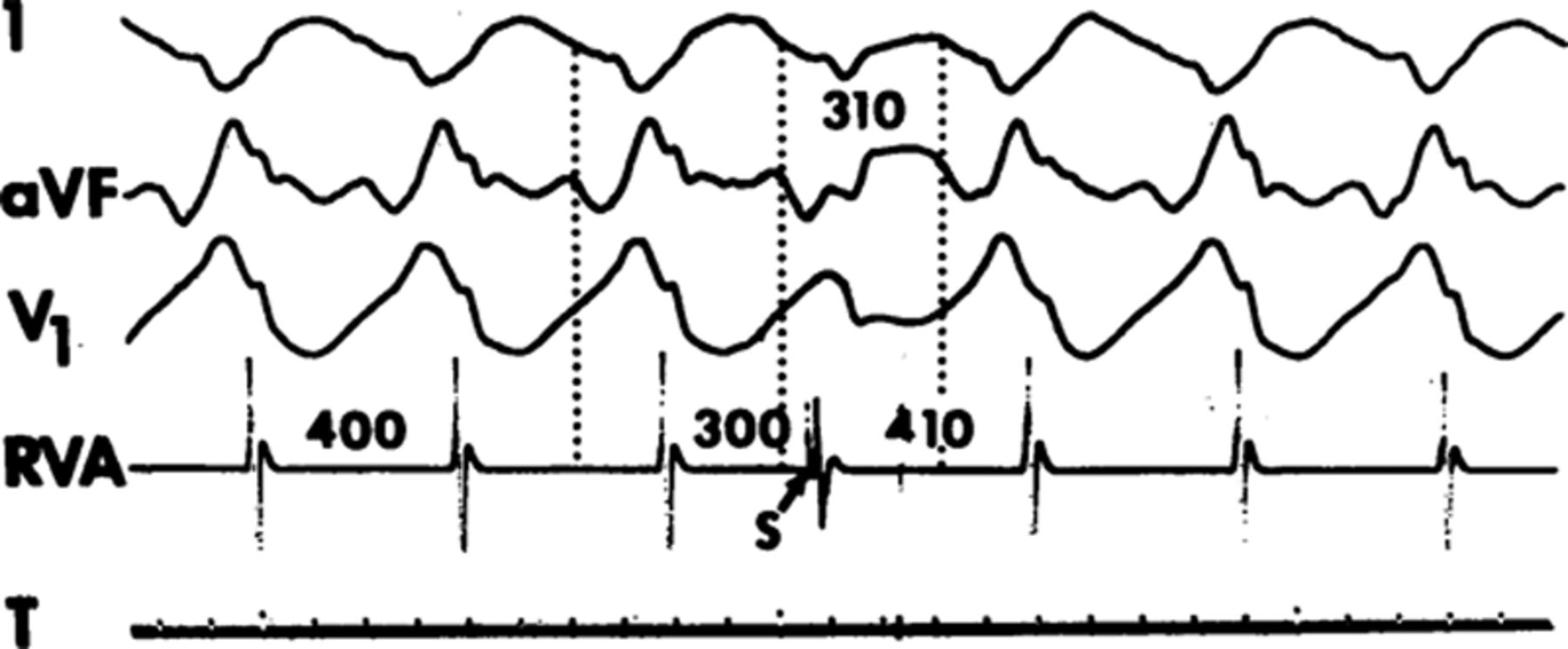 Conquest of Ventricular Tachycardia: Insights Into