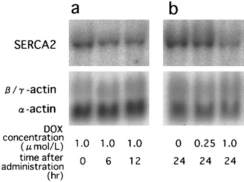 Mechanism of Doxorubicin-Induced Inhibition of Sarcoplasmic