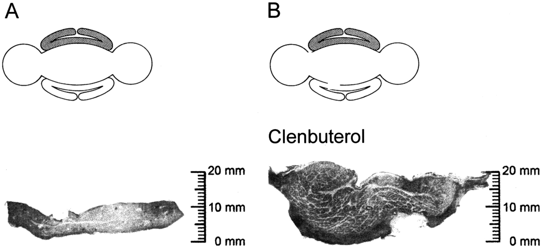 Clenbuterol-Supported Dynamic Training of Skeletal Muscle