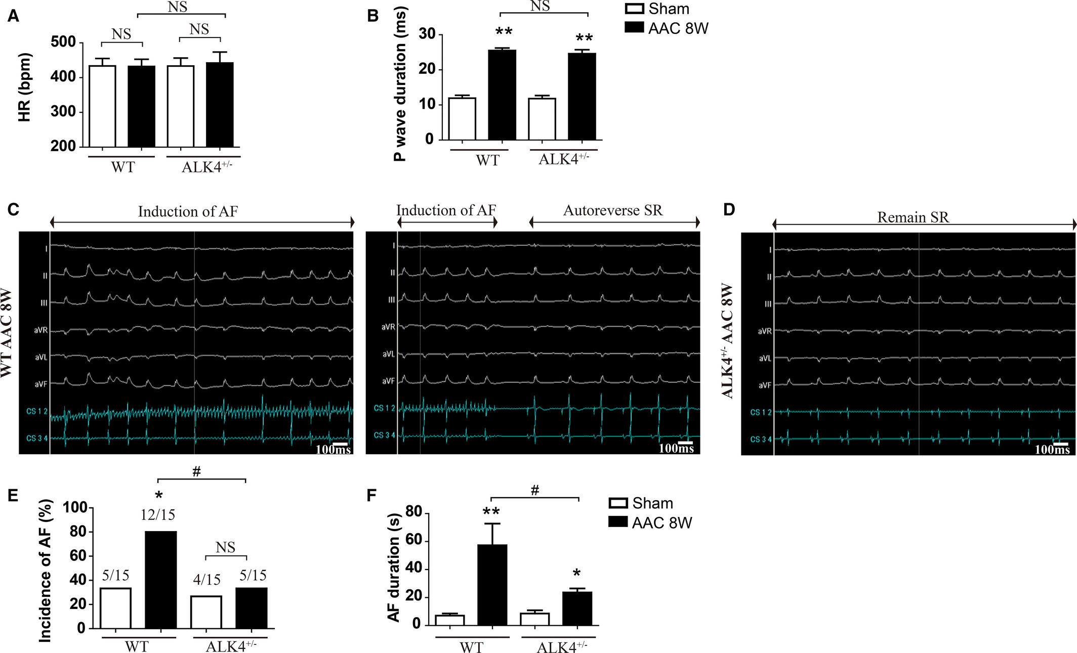 Activin Receptor‐Like Kinase 4 Haplodeficiency Mitigates