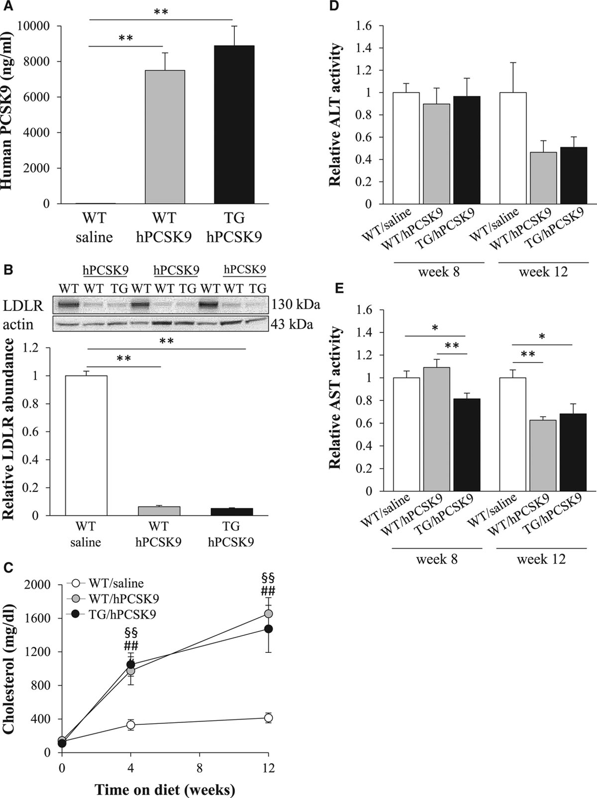 STK25 Regulates Cardiovascular Disease Progression in a