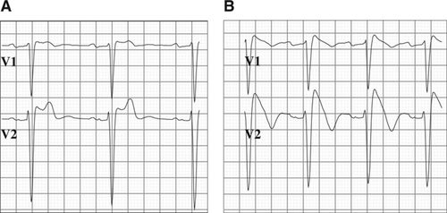 Brugada Syndrome ECG Is Highly Prevalent in Schizophrenia