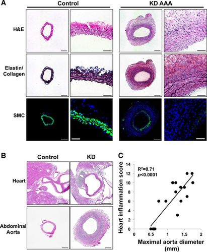 Role of Interleukin-1 Signaling in a Mouse Model of Kawasaki