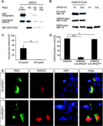 Protein Kinase D2 Controls Cardiac Valve Formation in