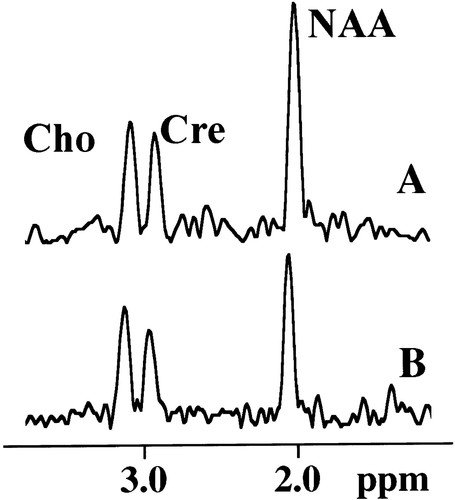 Neurometabolite Markers of Cerebral Injury in the