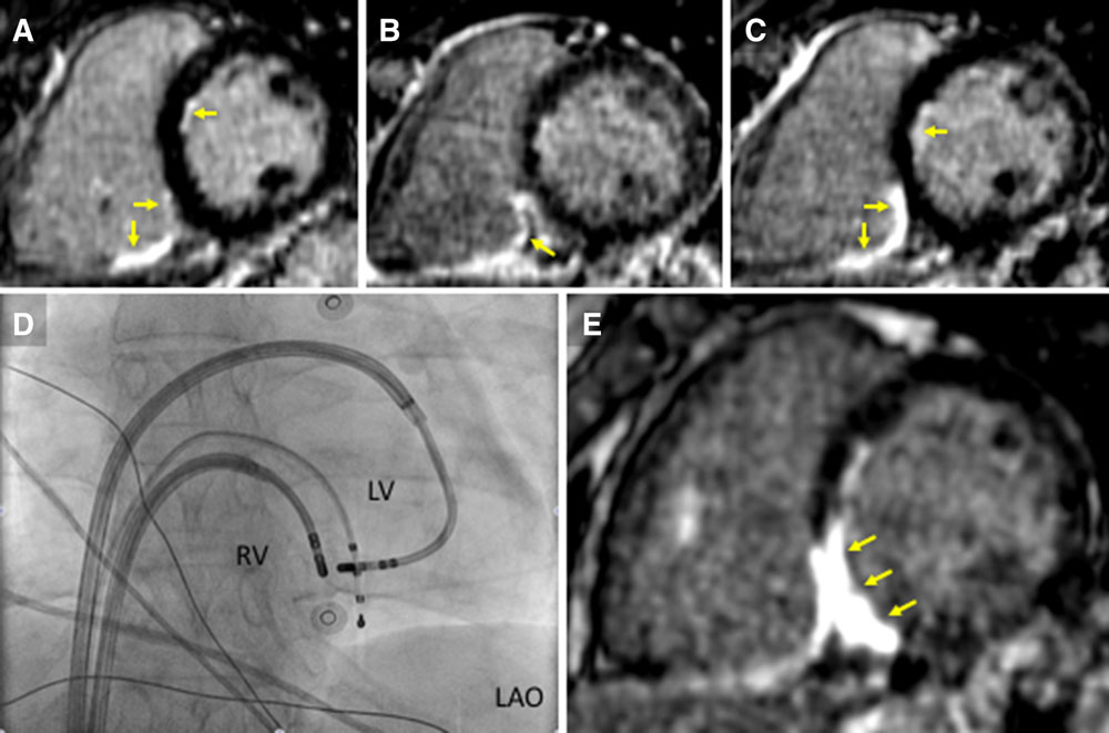 Cardiac Imaging in Patients With Ventricular Tachycardia | Circulation