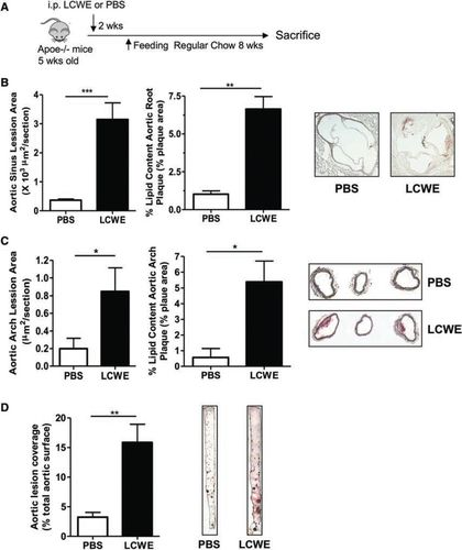 Marked Acceleration of Atherosclerosis After Lactobacillus