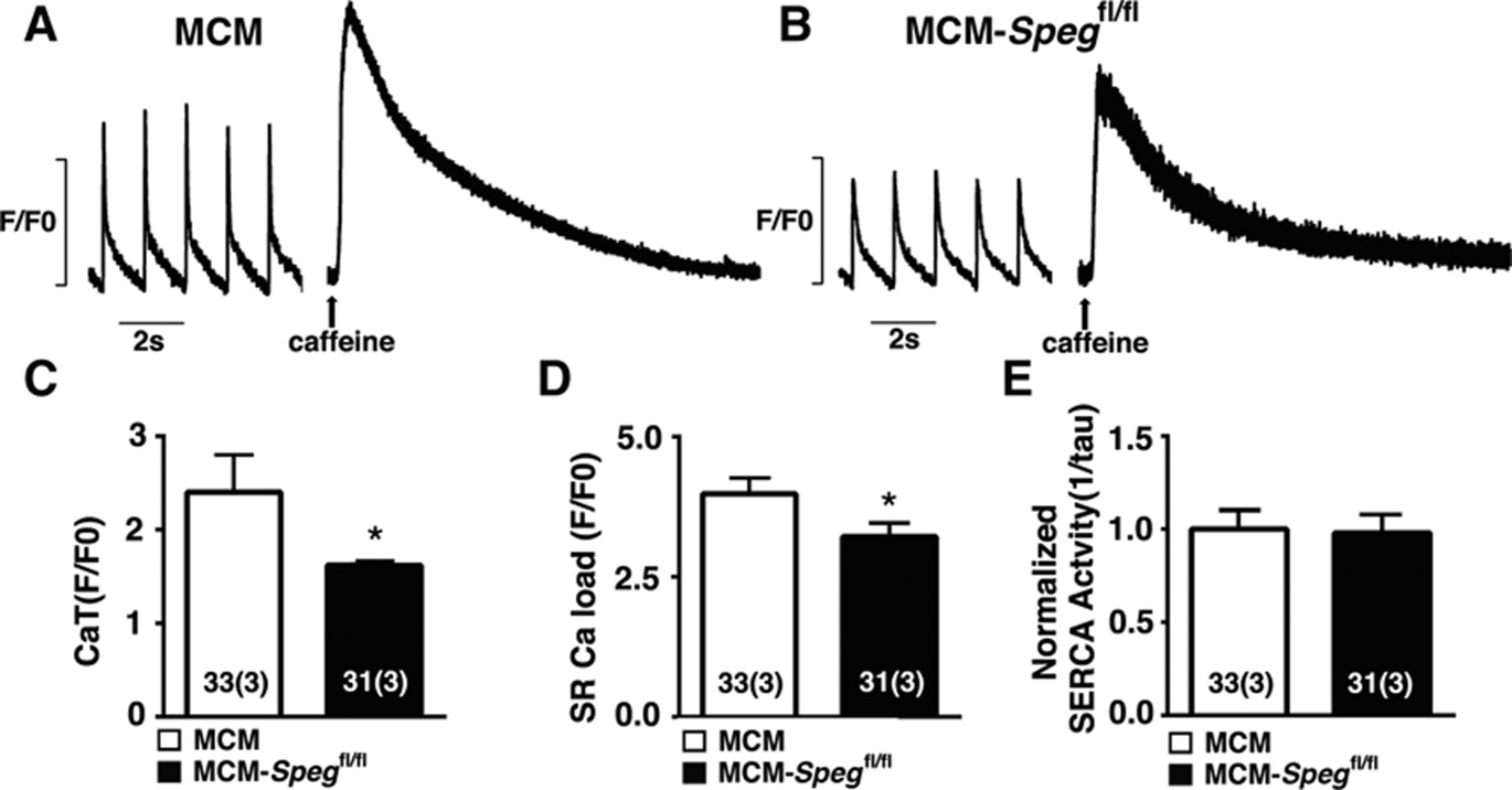 SPEG (Striated Muscle Preferentially Expressed Protein Kinase) Is