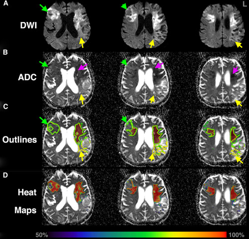 Big Data Approaches to Phenotyping Acute Ischemic Stroke