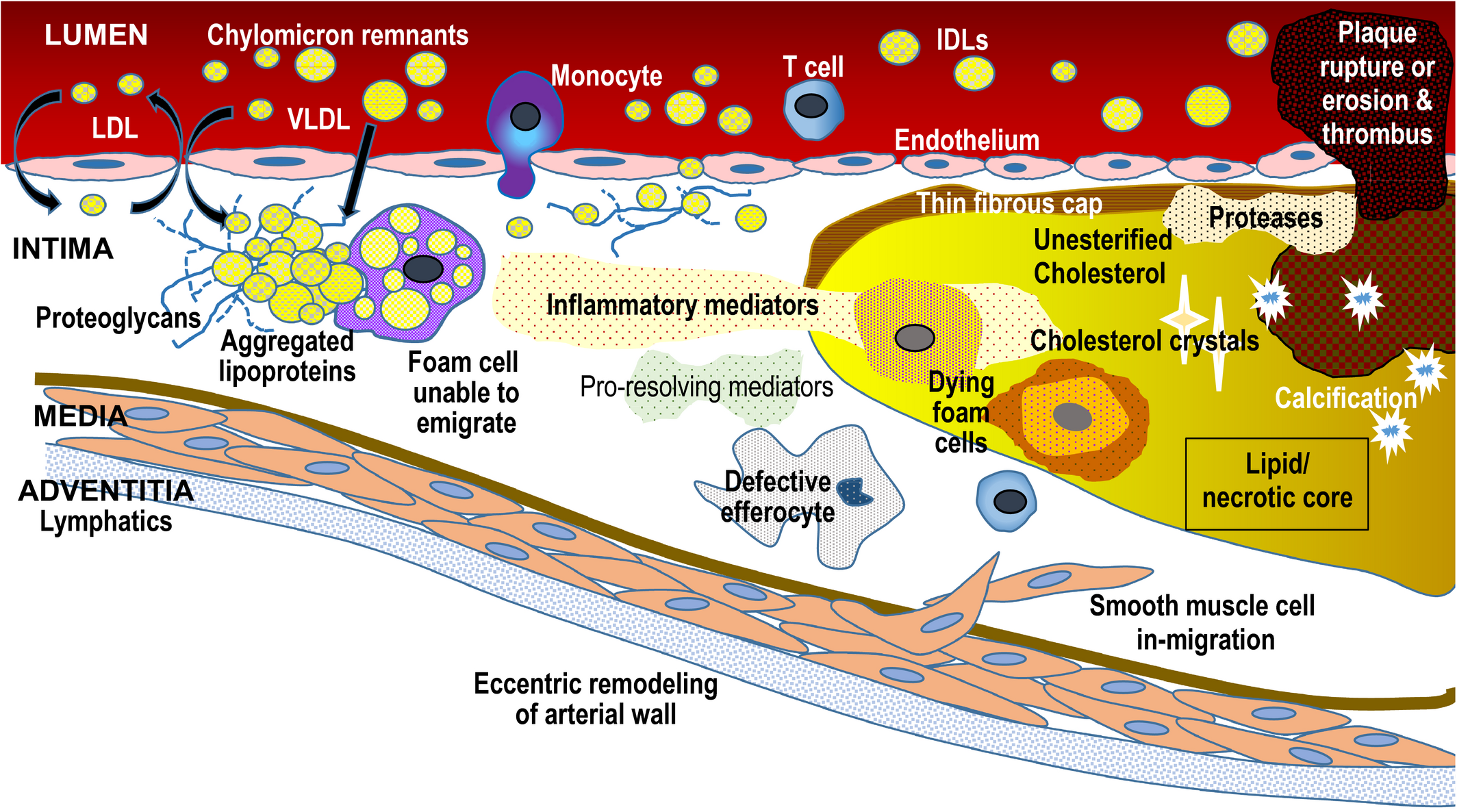 Eradicating the Burden of Atherosclerotic Cardiovascular Disease by
