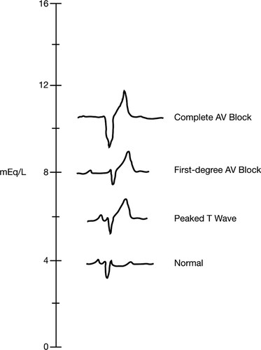 Part 12: Cardiac Arrest in Special Situations | Circulation
