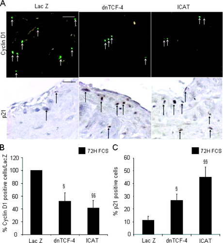 Regulation of Smooth Muscle Cell Proliferation by β-Catenin