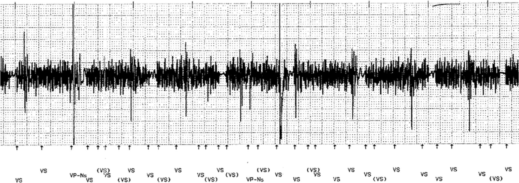 Effects of External Electrical and Magnetic Fields on Pacemakers and