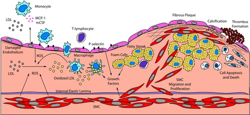 Oxidative Stress and Vascular Disease | Arteriosclerosis