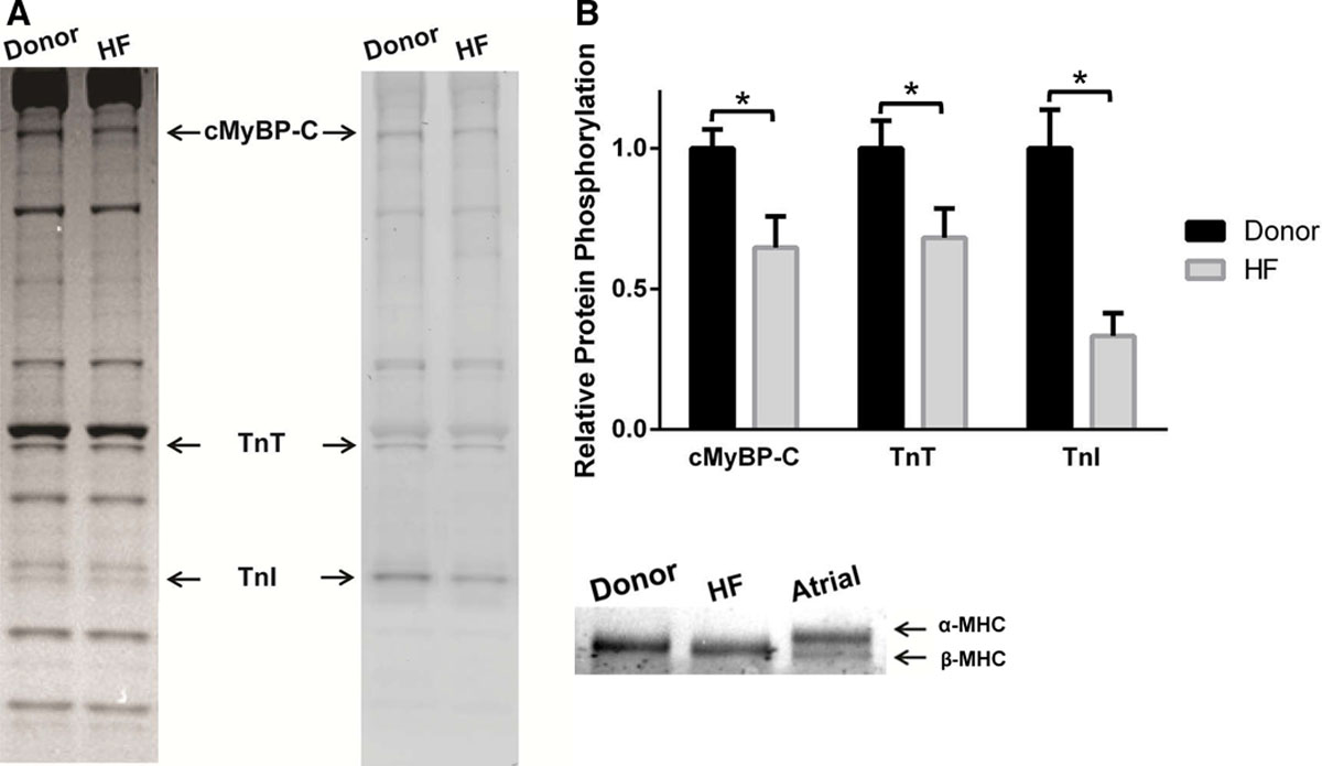 Dose-Dependent Effects of the Myosin Activator Omecamtiv