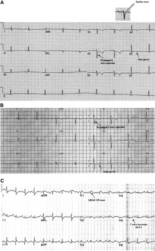Electrocardiographic Features of Arrhythmogenic Right Ventricular