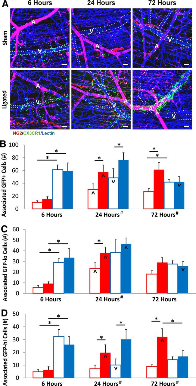 Monocytes Are Recruited From Venules During Arteriogenesis