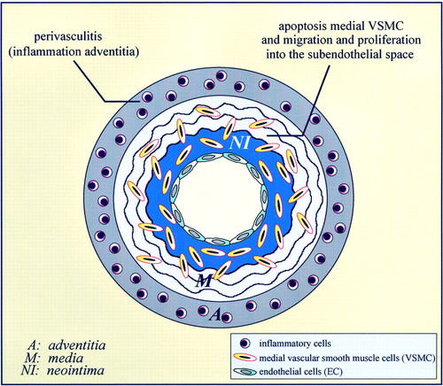 Origin of Vascular Smooth Muscle Cells and the Role of