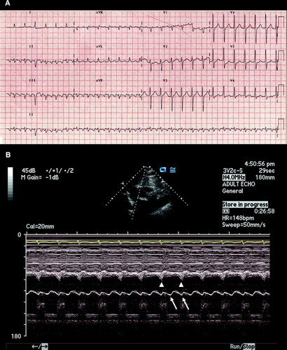 M-Mode Echocardiographic Demonstration of Atrial Flutter