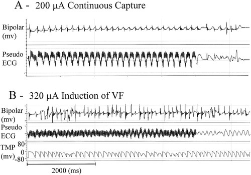 Mechanisms of Ventricular Fibrillation Induction by 60-Hz