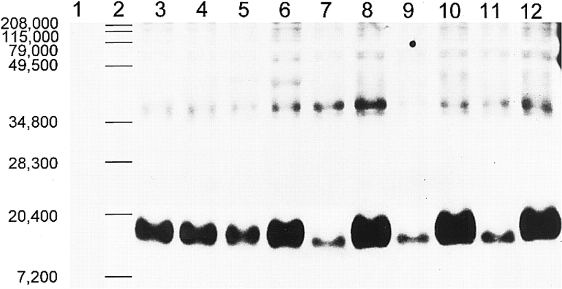 f72895e341d Oxidized LDL Mediates the Release of Fibroblast Growth Factor-1 ...