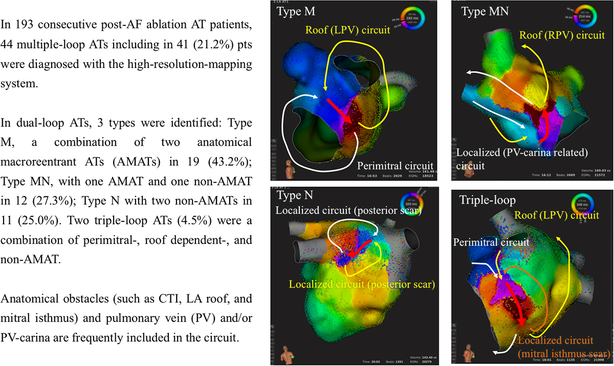 Comprehensive Multicenter Study of the Common Isthmus in Post–Atrial