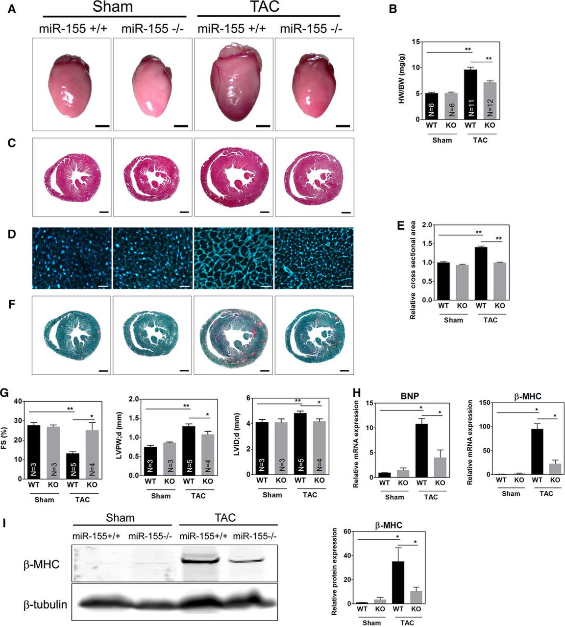Loss Of MicroRNA-155 Protects The Heart From Pathological