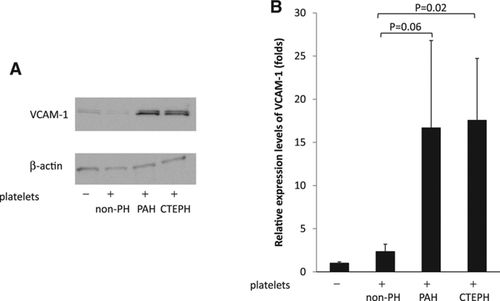 Platelets Are Highly Activated in Patients of Chronic Thromboembolic
