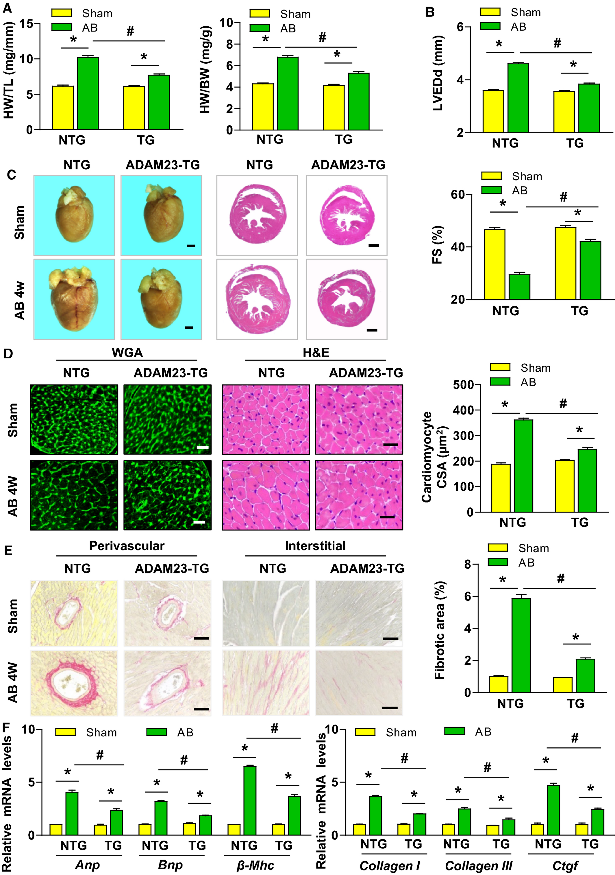 ADAM23 in Cardiomyocyte Inhibits Cardiac Hypertrophy by