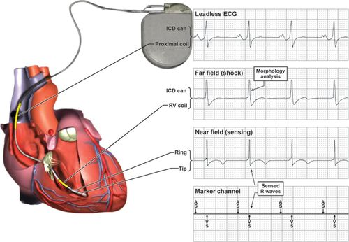 Troubleshooting Implanted Cardioverter Defibrillator Sensing ... on