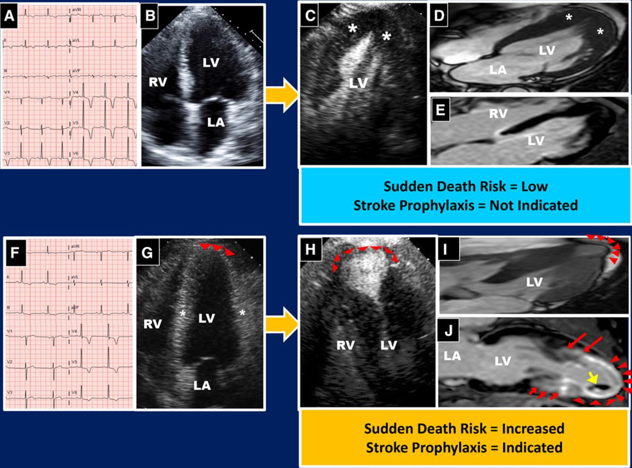 How to Image Hypertrophic Cardiomyopathy | Circulation