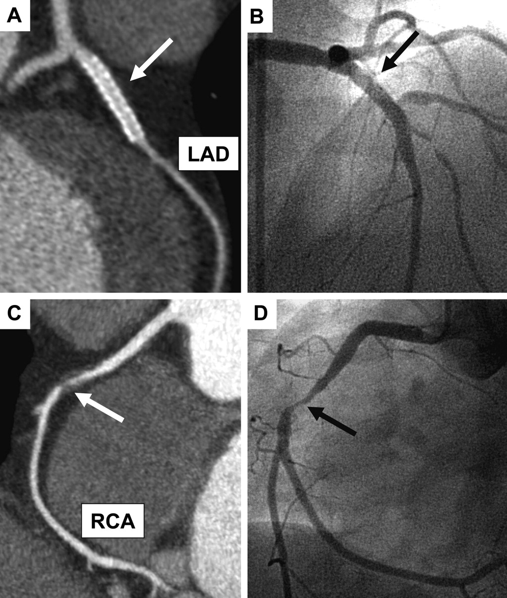 Treadmill Stress Test Negative: Usefulness Of 64-Slice Cardiac Computed Tomographic