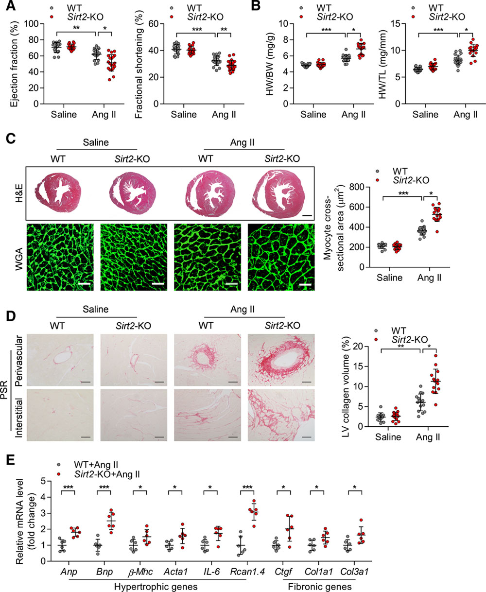 SIRT2 Acts as a Cardioprotective Deacetylase in Pathological Cardiac