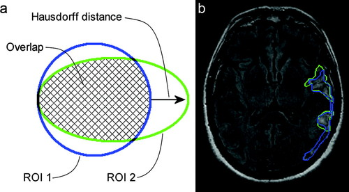 Interrater Agreement for Final Infarct MRI Lesion Delineation   Stroke