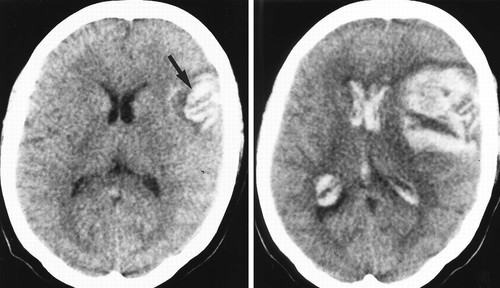 Oral Anticoagulants And Intracranial Hemorrhage Stroke